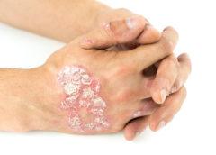 Krem na atopowe zapalenie skóry
